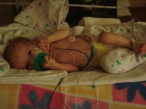 Kennedy CDH Congenital Diaphragmatic Hernia