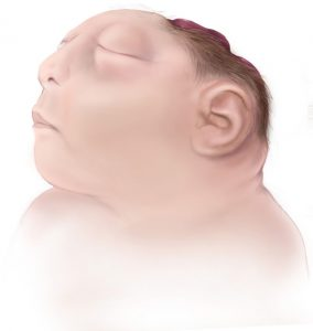 Illustration of a baby with anencephaly