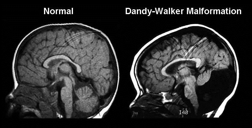 Dandy-Walker Malformation Diagnosis during Pregnancy
