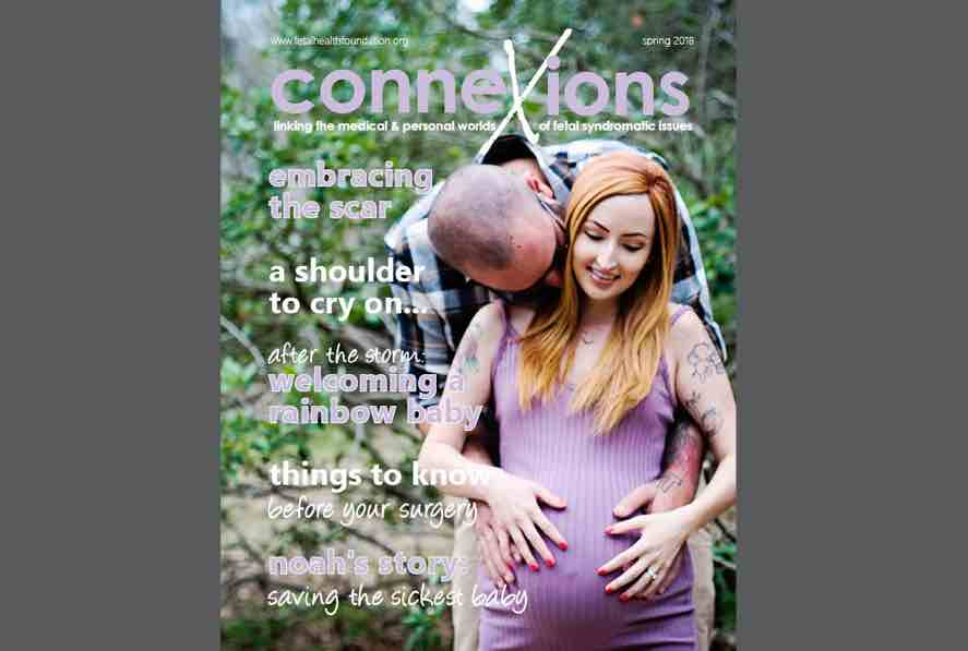 Connexions Magazine 2018 is Live