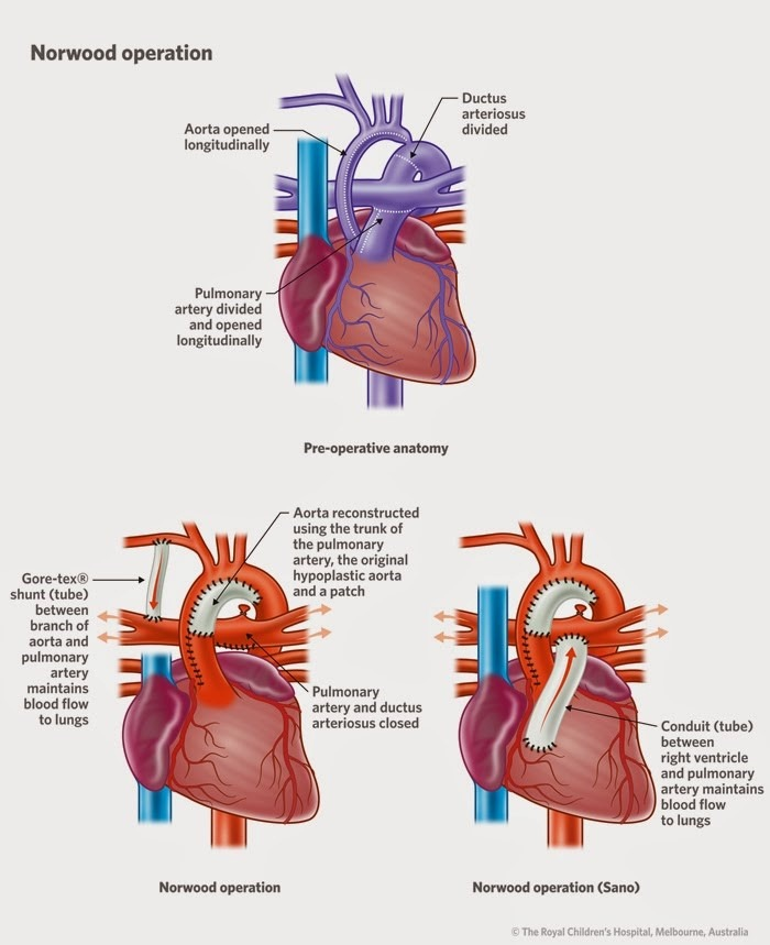An illustration of Hypoplastic left heart syndrome