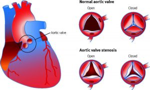 Illustration of a fetal hear and various degrees of aortic stenosis