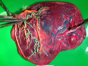 Twin Anemia Polycythemia Sequence placenta photo